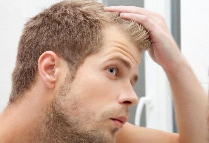 hair loss or alopecia.