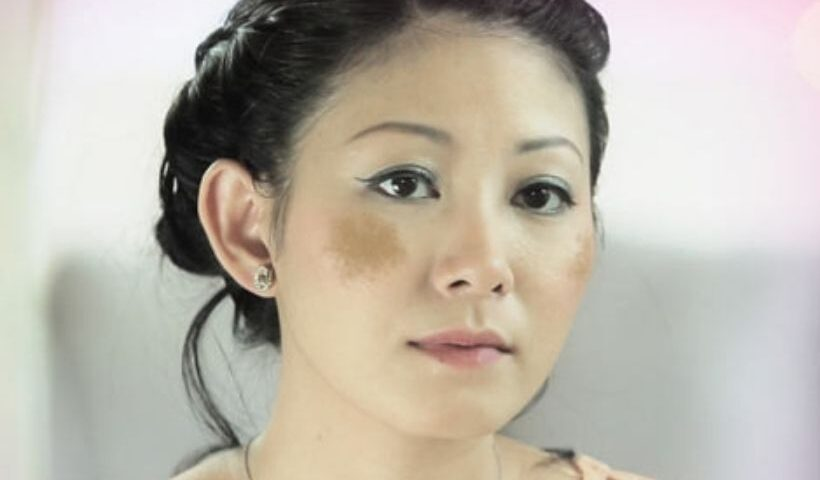 What Is Facial Melasma And How To Combat It